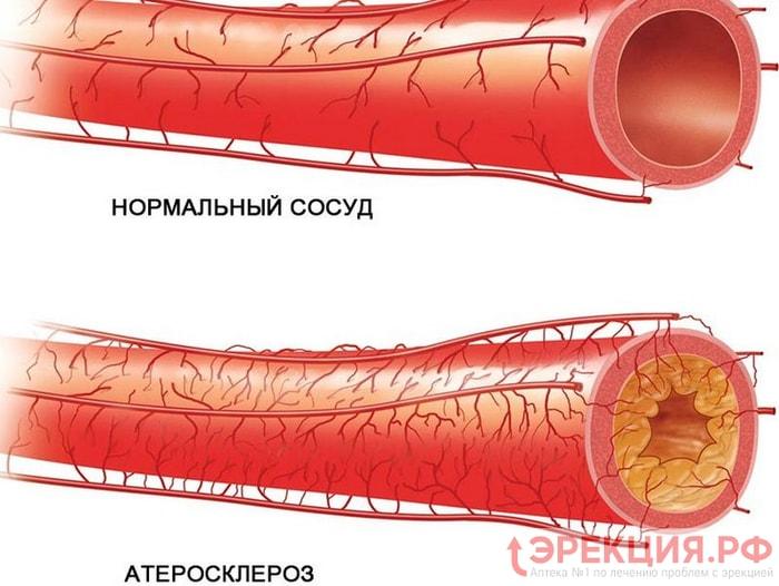 Эректильная дисфункция и атеросклероз