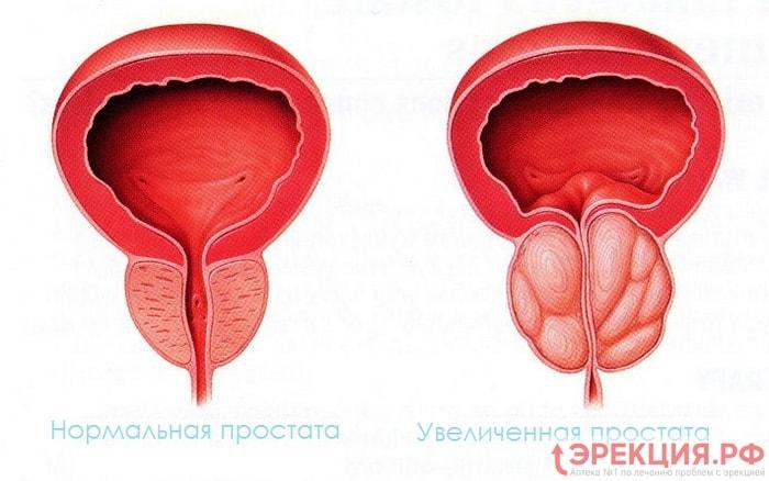 Нормальная и воспаленная (увеличенная) простата
